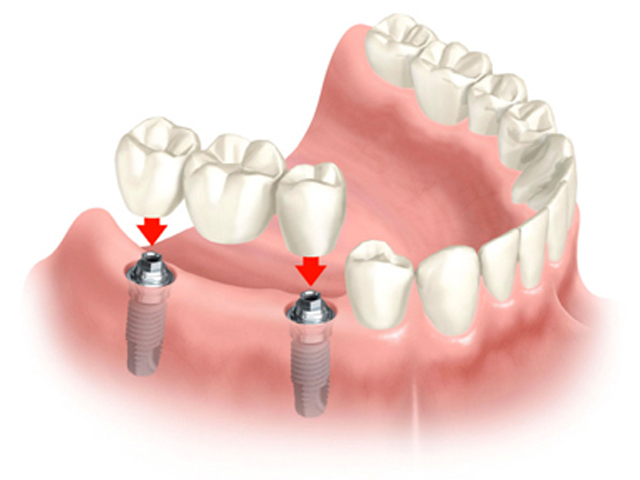 Cay Ghep Implant La Gi Hoat Dong Ra Sao